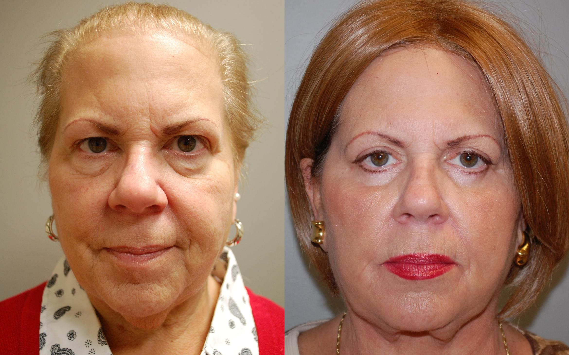 Blepharoplasty Before & After Photo | Springfield, MA | Aesthetic Plastic & Reconstructive Surgery