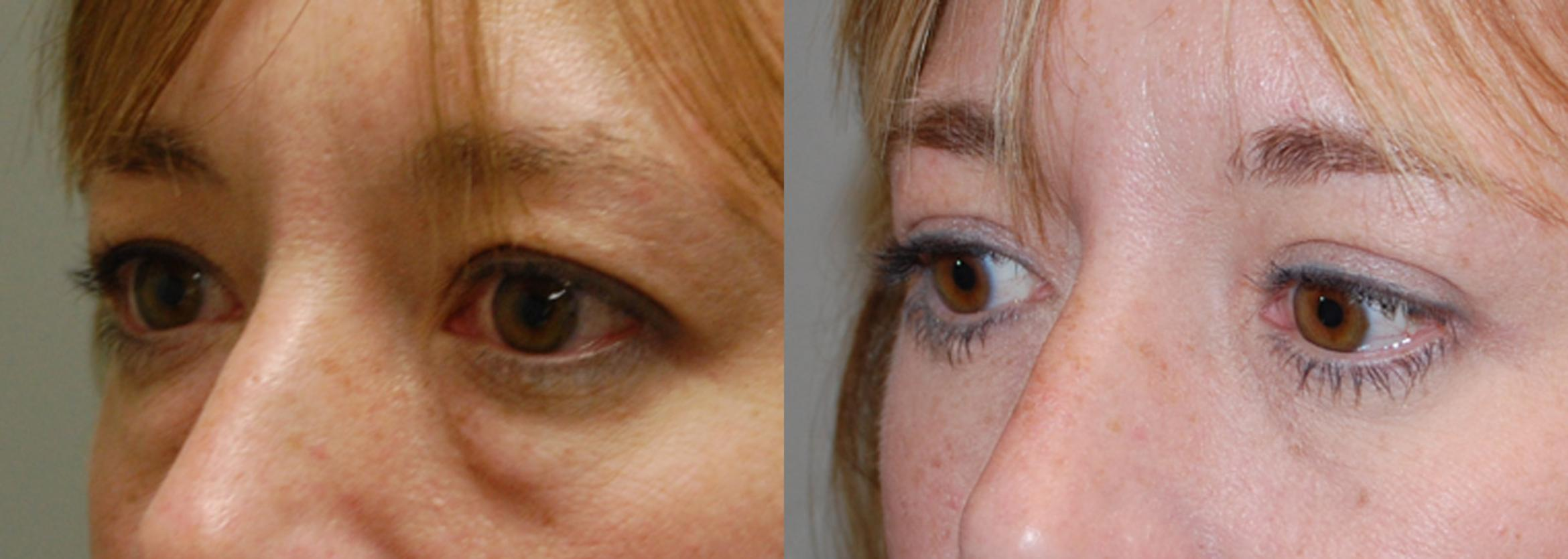 Blepharoplasty Before & After Photo | Longmeadow, MA | Aesthetic Plastic & Reconstructive Surgery