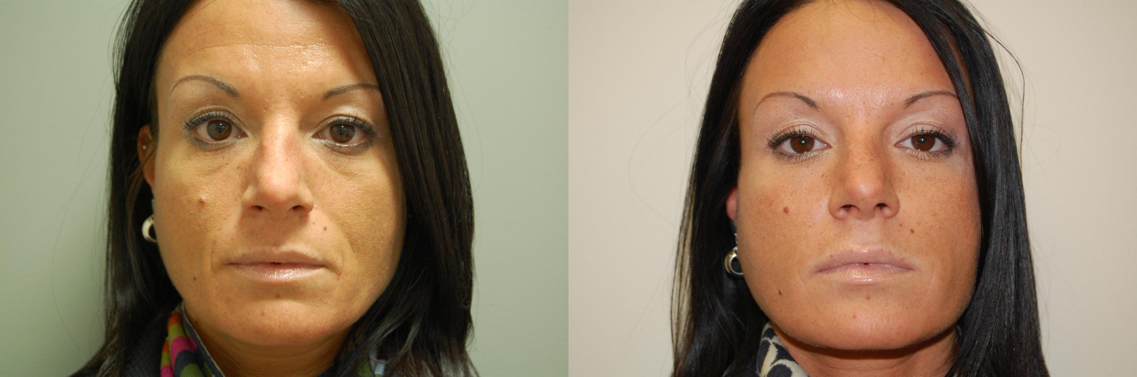 BOTOX Cosmetic Before & After Photo | Longmeadow, MA | Aesthetic Plastic & Reconstructive Surgery