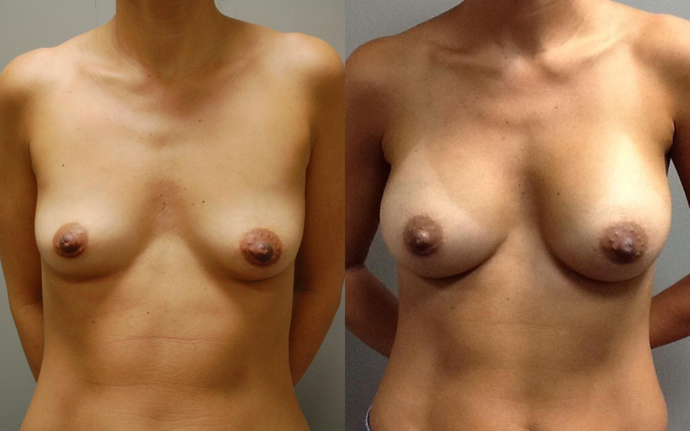 Breast Augmentation Before & After Photo | Longmeadow, MA | Aesthetic Plastic & Reconstructive Surgery