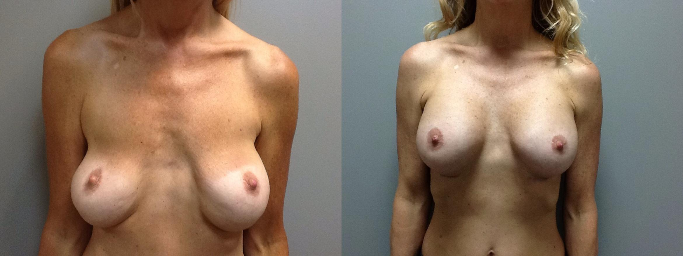 Before After Boob Job Nude