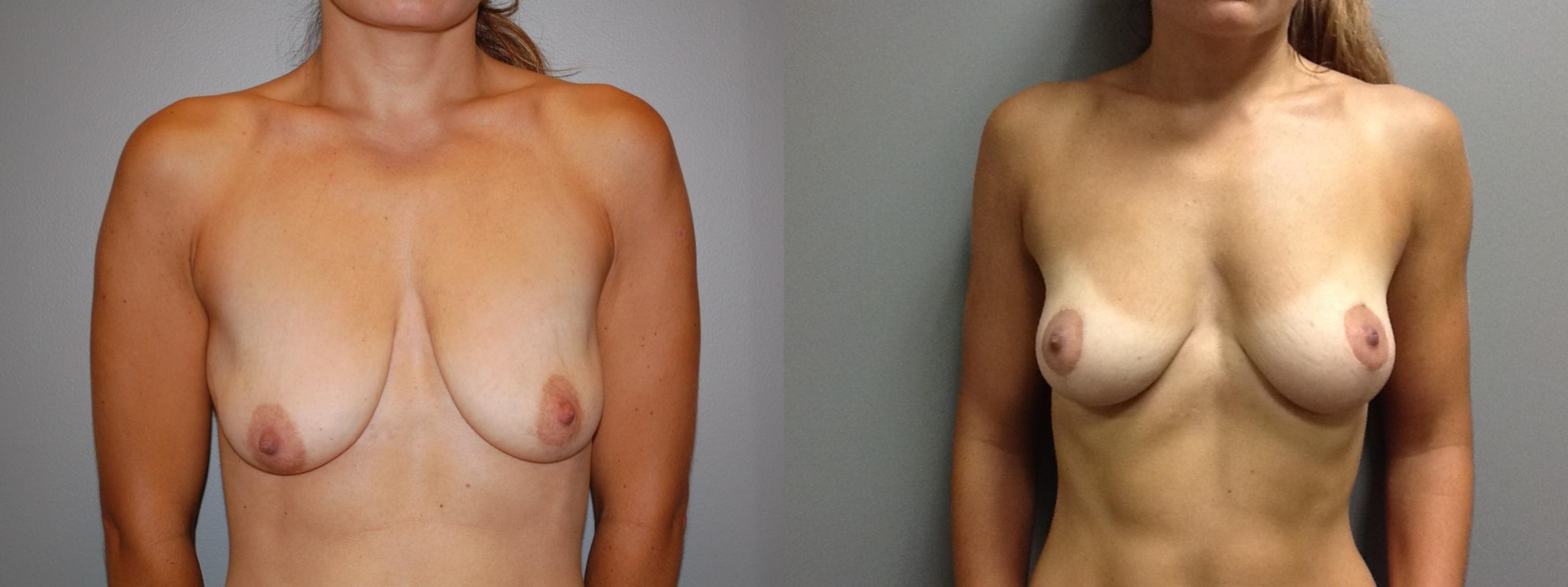 Breast Lift Before & After Photo | Longmeadow, MA | Aesthetic Plastic & Reconstructive Surgery