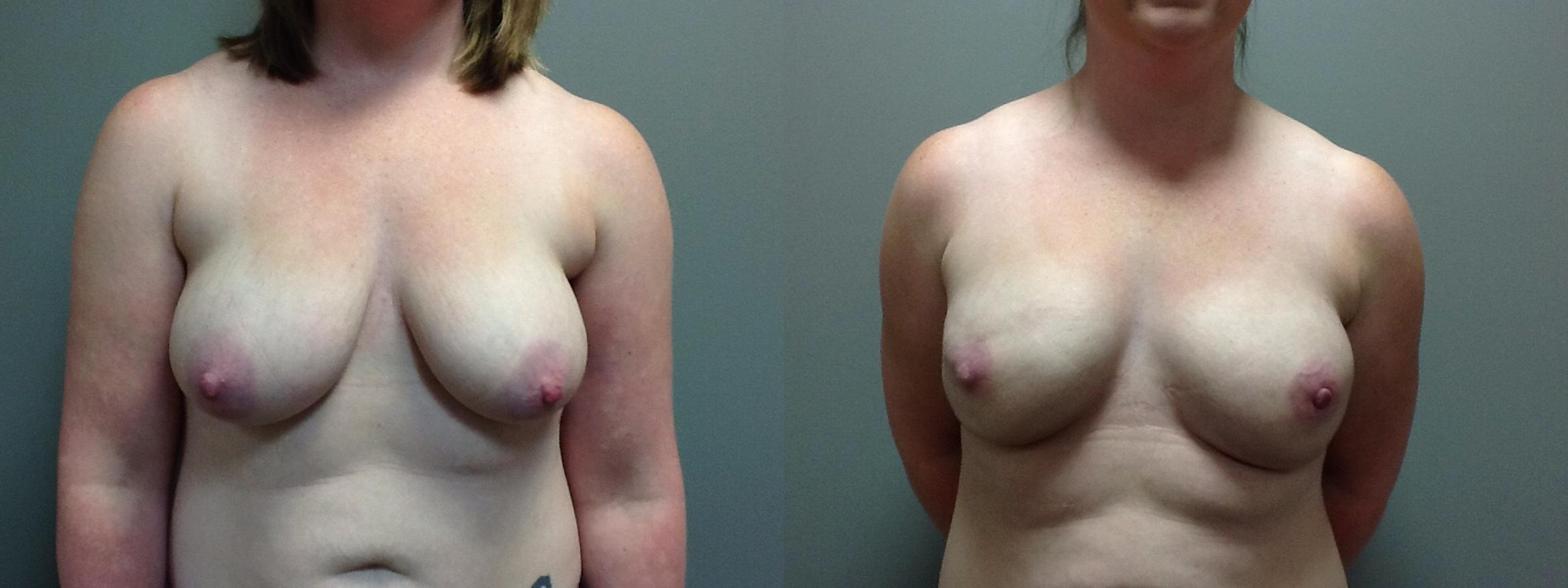 Breast Reconstruction Before & After Photo | Longmeadow, MA | Aesthetic Plastic & Reconstructive Surgery