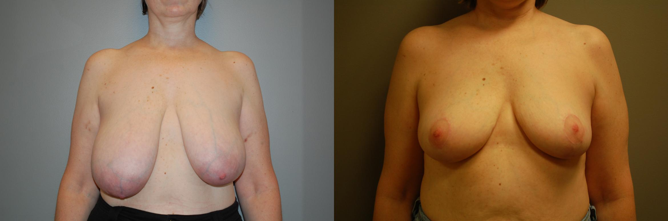 Breast Reduction Before & After Photo | Longmeadow, MA | Aesthetic Plastic & Reconstructive Surgery