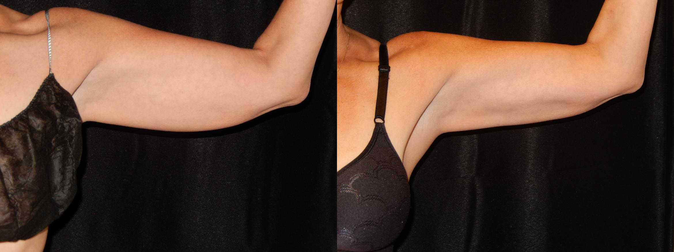 CoolSculpting Before & After Photo | Longmeadow, MA | Aesthetic Plastic & Reconstructive Surgery