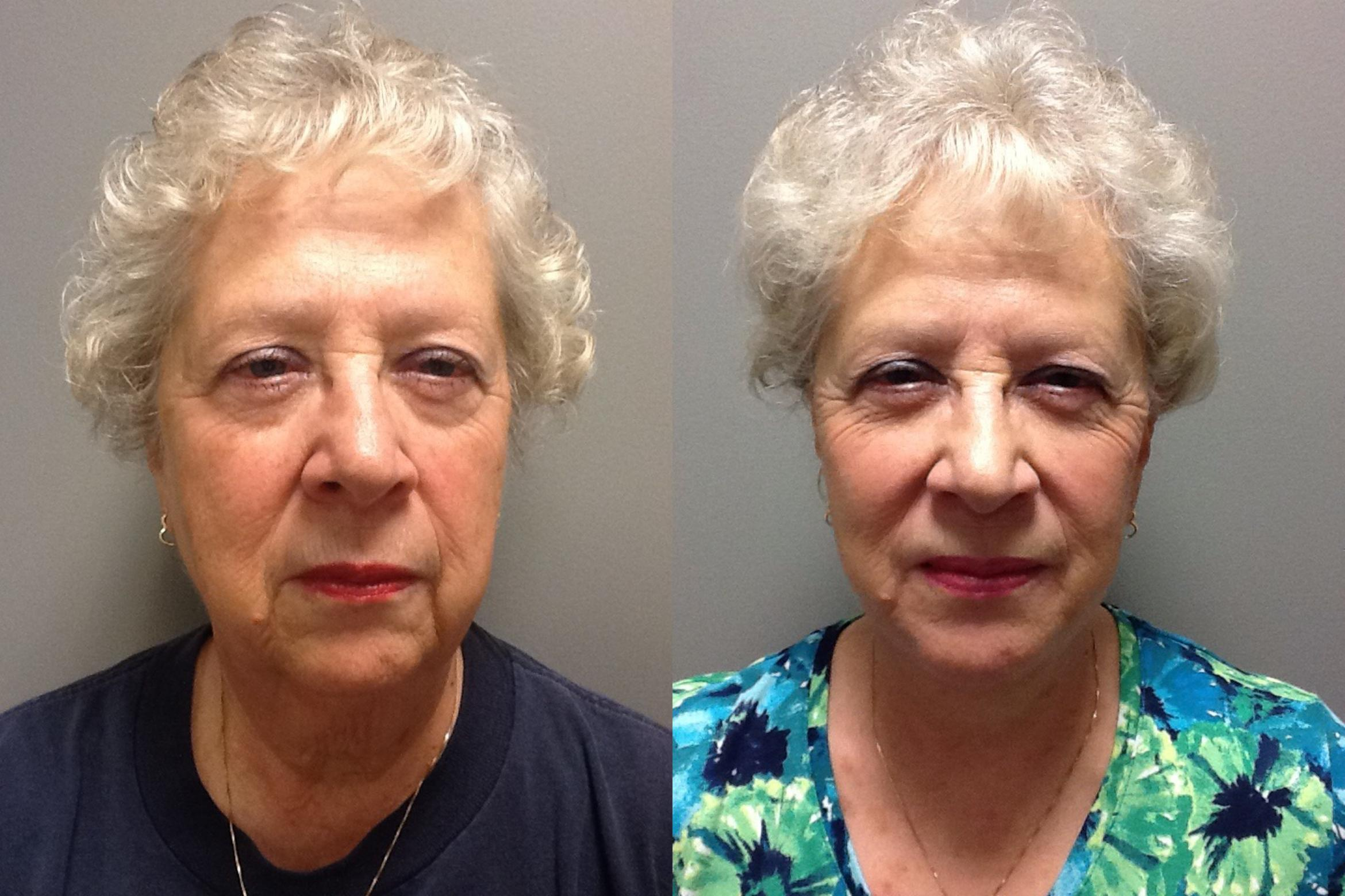 Face Lift Before & After Photo | Springfield, MA | Aesthetic Plastic & Reconstructive Surgery
