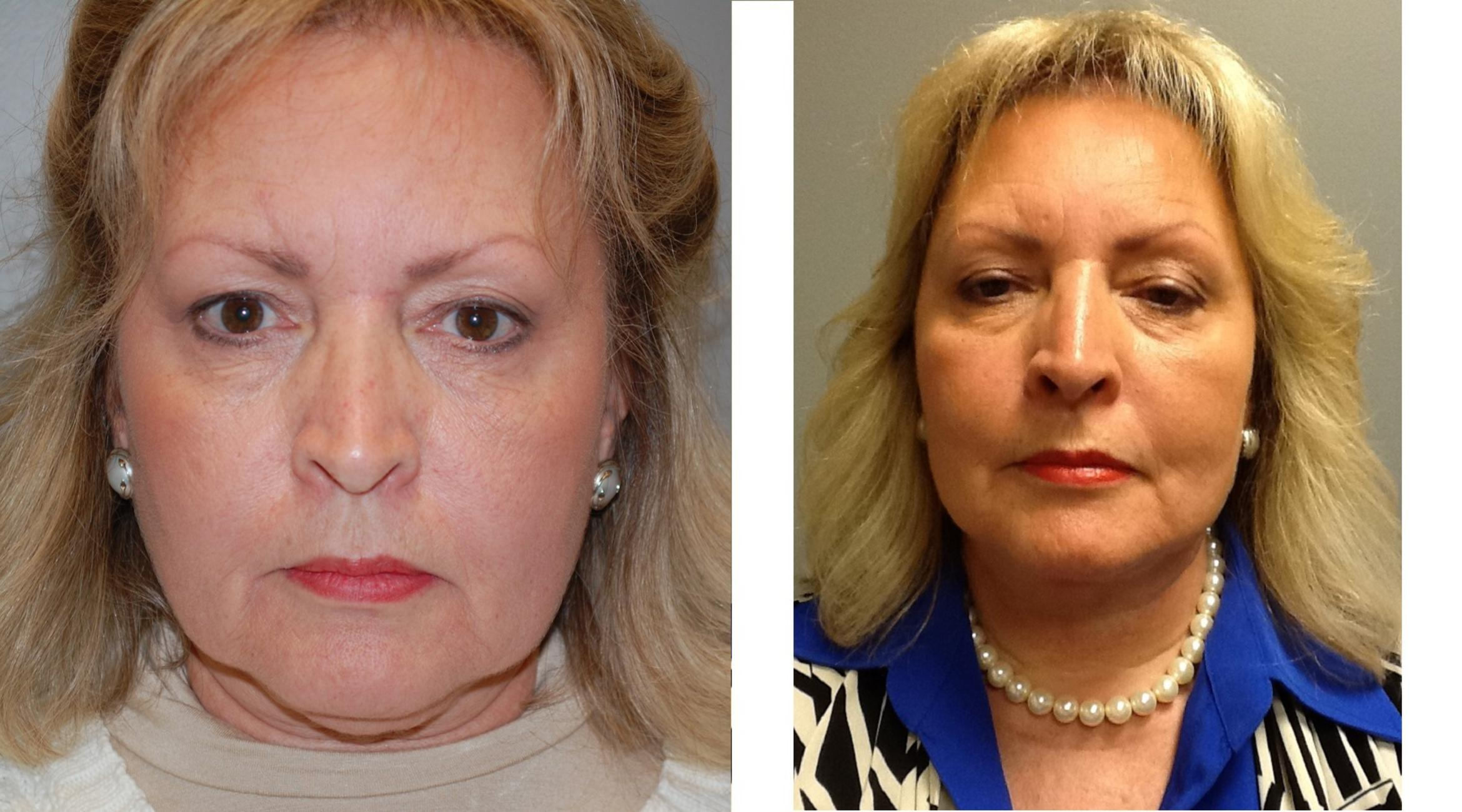 Face Lift Before & After Photo | Longmeadow, MA | Aesthetic Plastic & Reconstructive Surgery