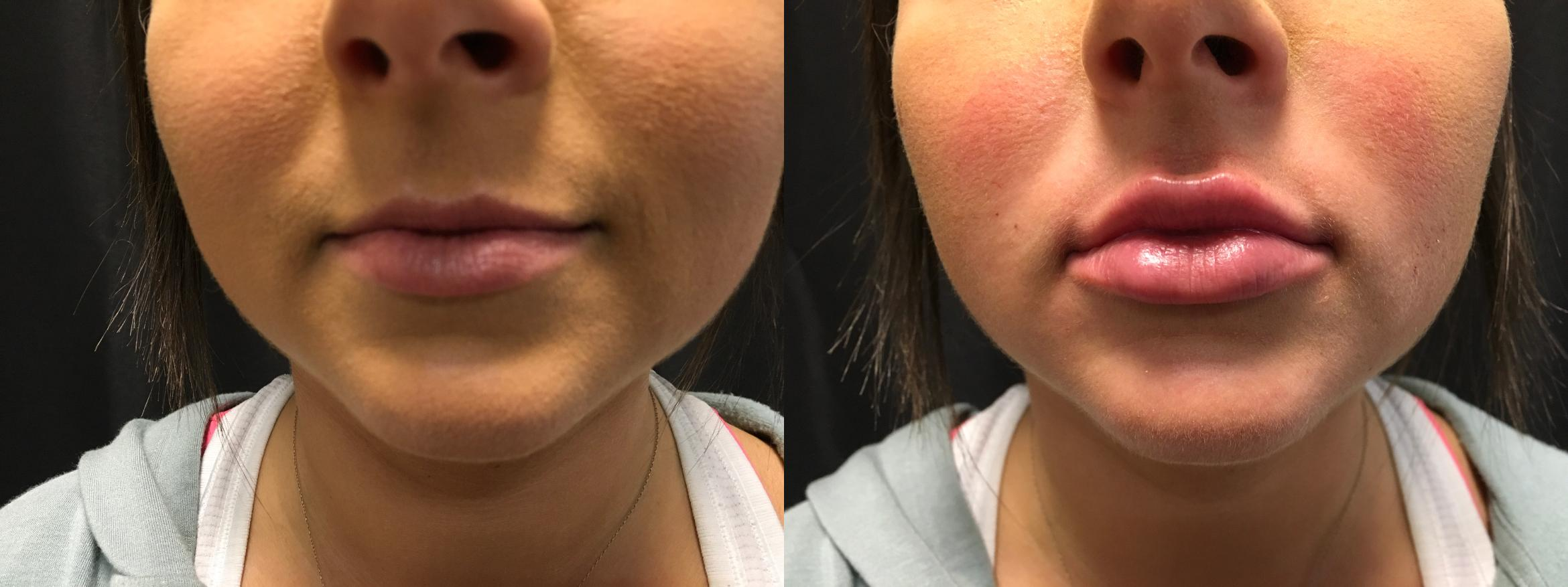 Fillers Before & After Photo | Springfield, MA | Aesthetic Plastic & Reconstructive Surgery