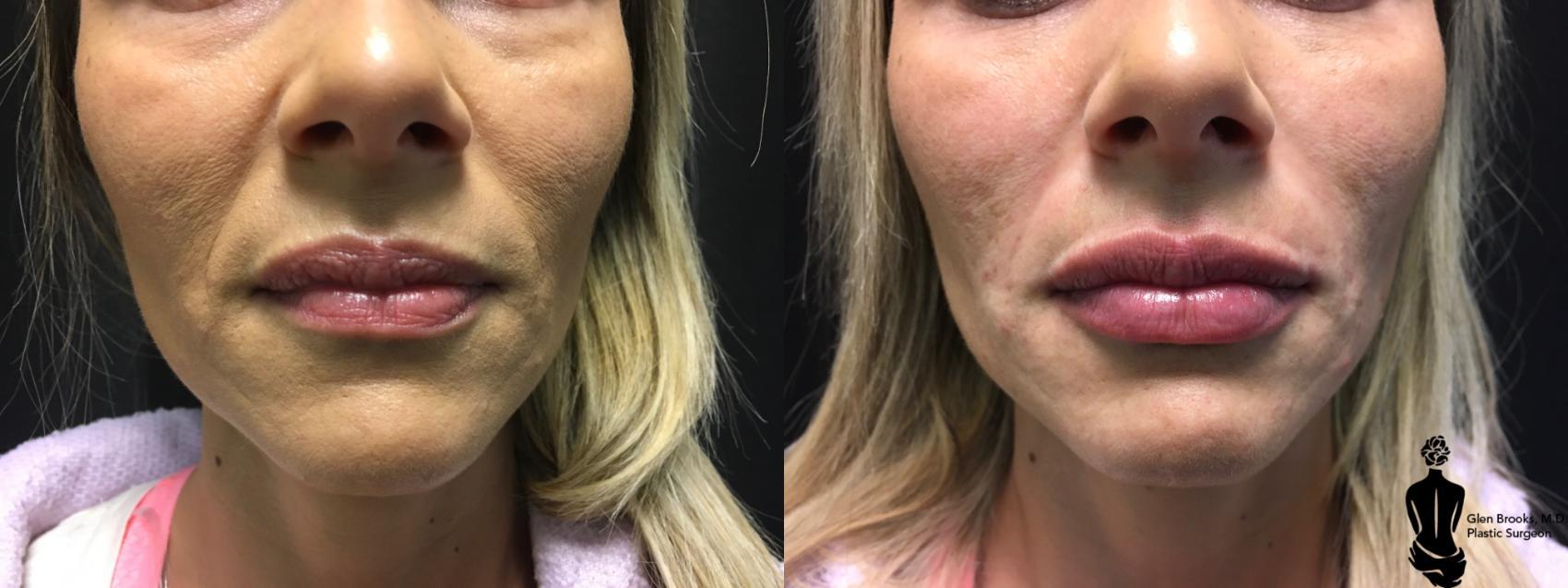 Hartford and Springfield Skin Rejuvenation with Dermal Fillers