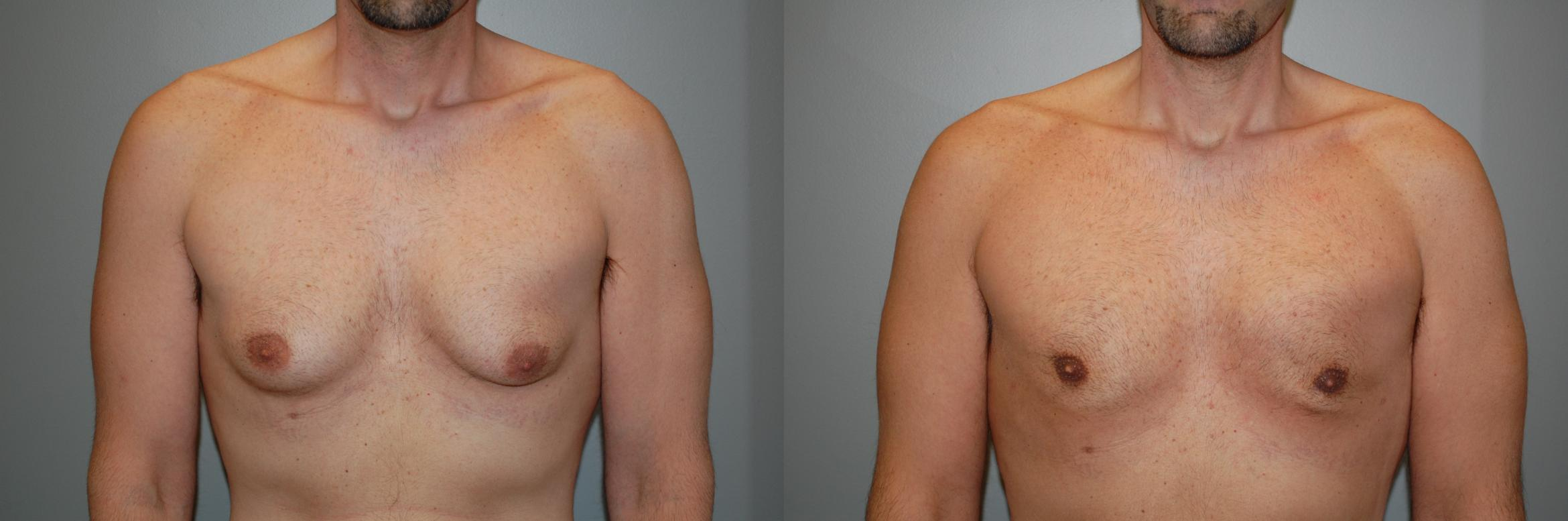 Gynecomastia Before & After Photo | Longmeadow, MA | Aesthetic Plastic & Reconstructive Surgery