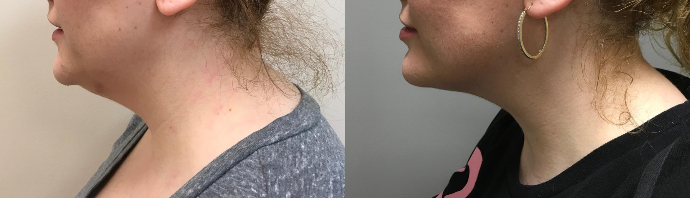 Kybella Before & After Photo | Springfield, MA | Aesthetic Plastic & Reconstructive Surgery