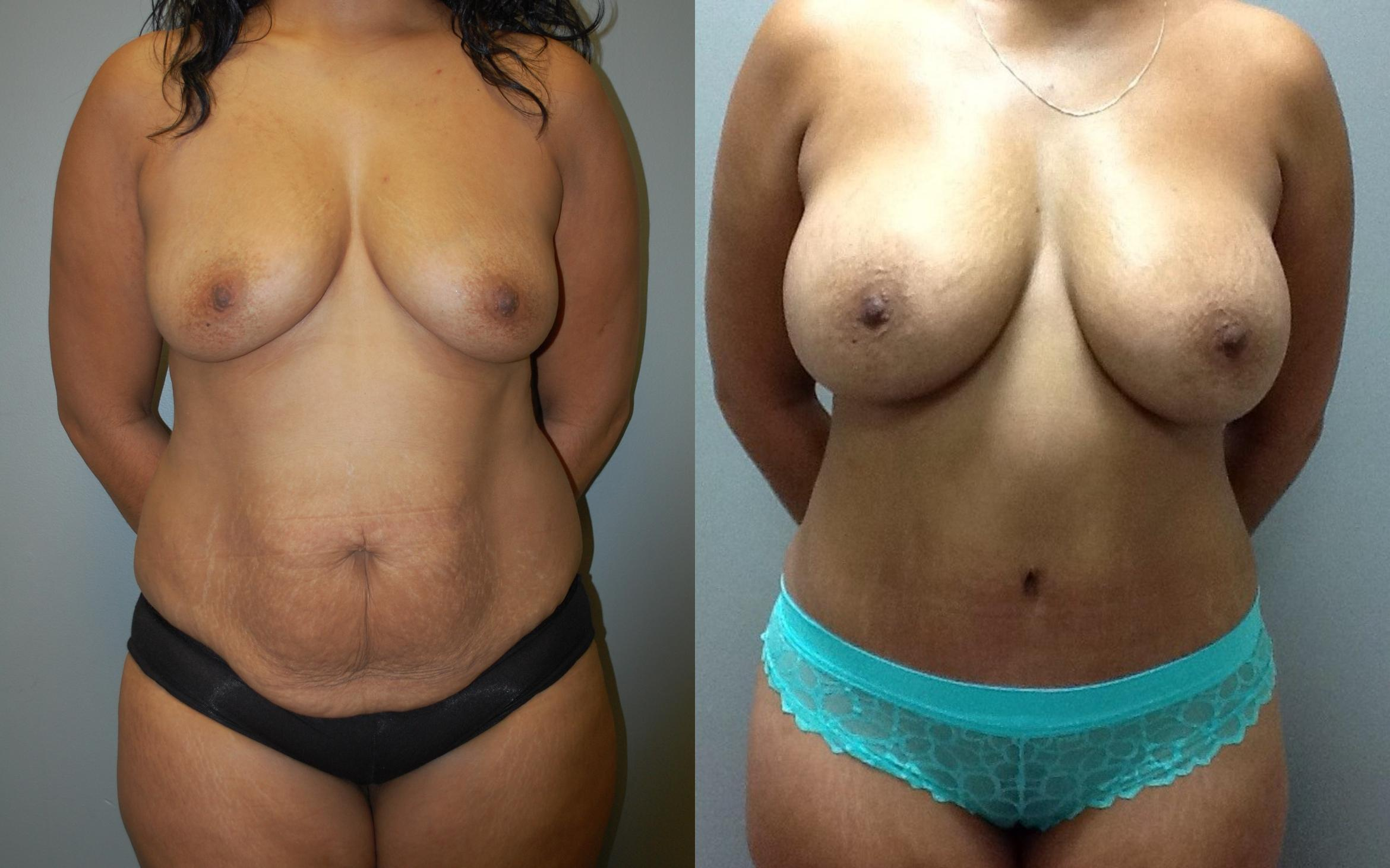 Liposuction Before & After Photo | Springfield, MA | Aesthetic Plastic & Reconstructive Surgery