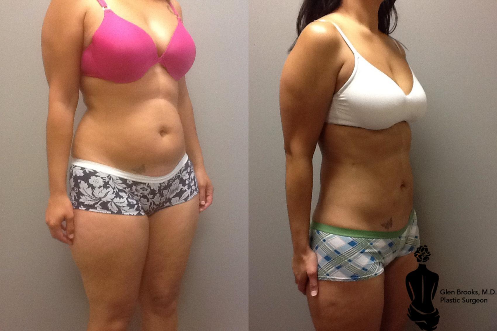 Liposuction Before After Photos Patient 60 Longmeadow Ma Aesthetic Plastic Reconstructive Surgery
