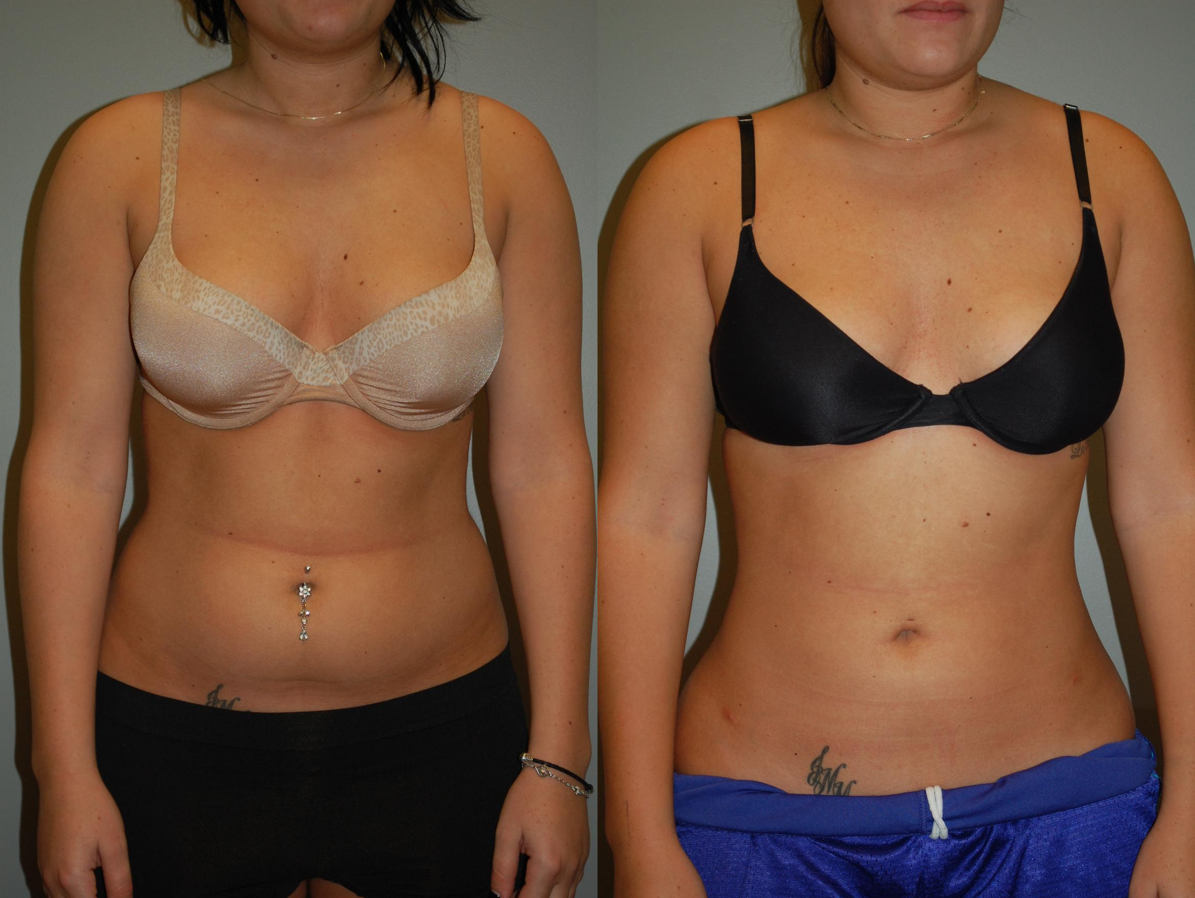 Liposuction Before & After Photo | Longmeadow, MA | Aesthetic Plastic & Reconstructive Surgery