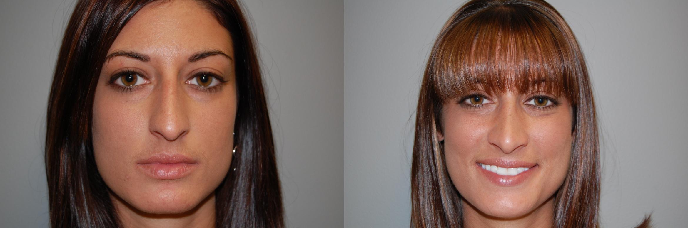Rhinoplasty Before & After Photo | Longmeadow, MA | Aesthetic Plastic & Reconstructive Surgery